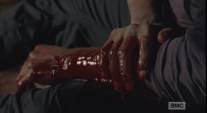 tyreese's bitten arm close