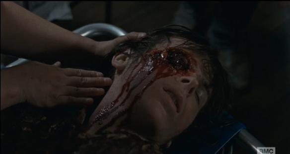 rick brings carl 3 eye wound